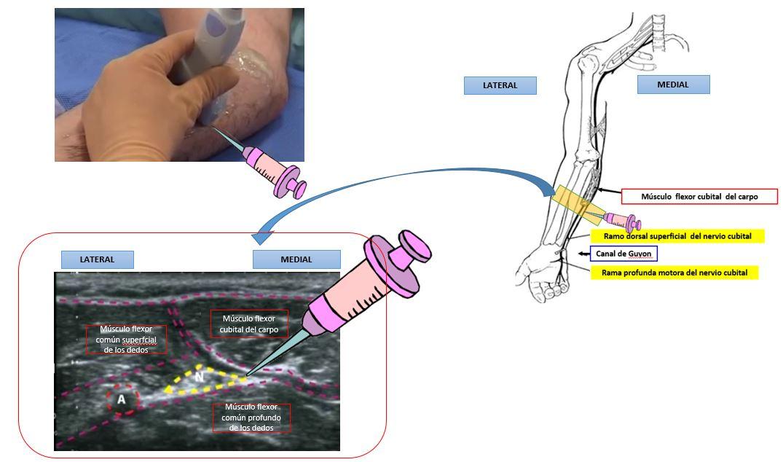 Bloqueo del nervio cubital a nivel del antebrazo | Dolopedia
