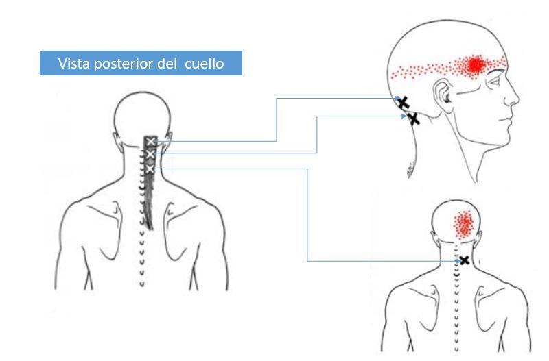 Infiltración del músculo semiespinoso de la cabeza | Dolopedia