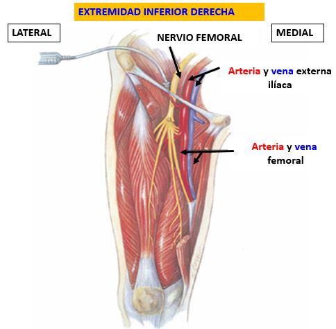 Bloqueo del nervio femoral en la zona inguinal   Dolopedia