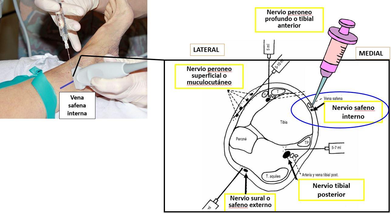 Bloqueo del nervio safeno en el tobillo | Dolopedia