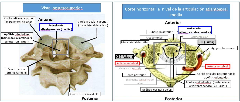artroza deformantă a articulației atlanto-axiale)