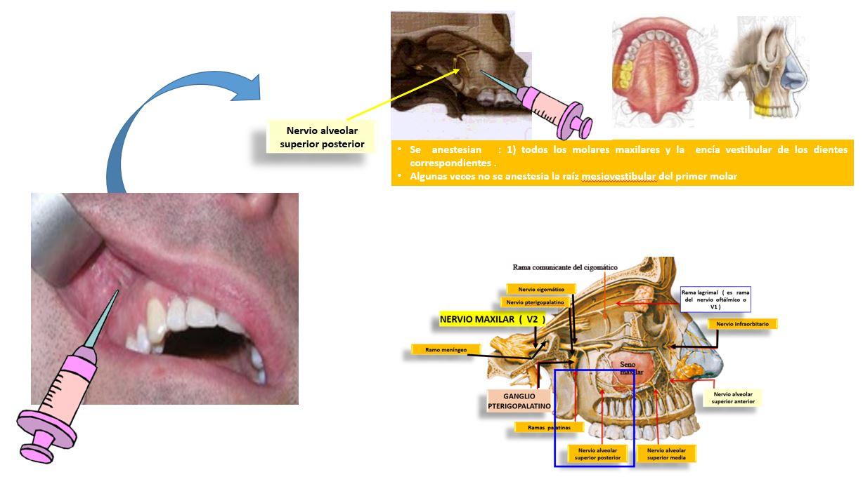Bloqueo del nervio alveolar superior posterior | Dolopedia