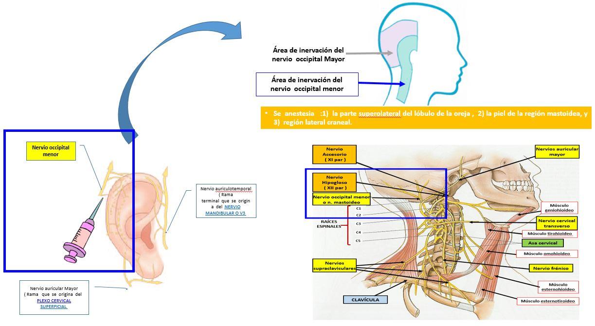Bloqueo del nervio occipital o nervio mastoideo | Dolopedia