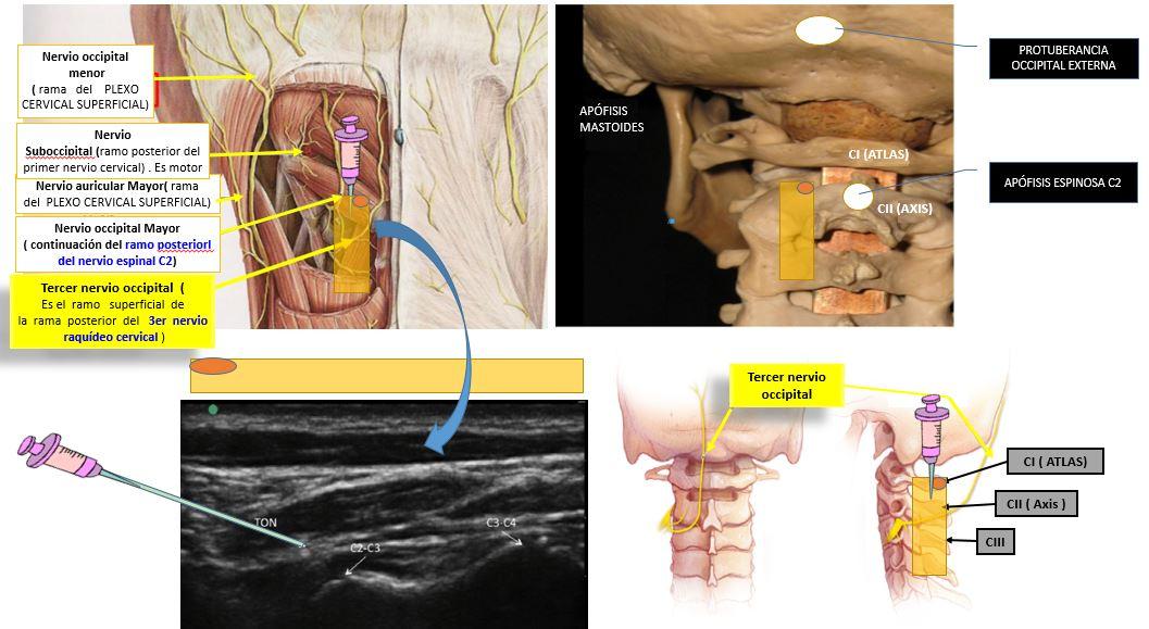 Bloqueo del tercer nervio occipital o TON BLOCK | Dolopedia