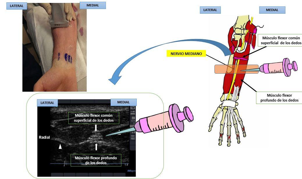 Bloqueo del nervio mediano a nivel del antebrazo | Dolopedia