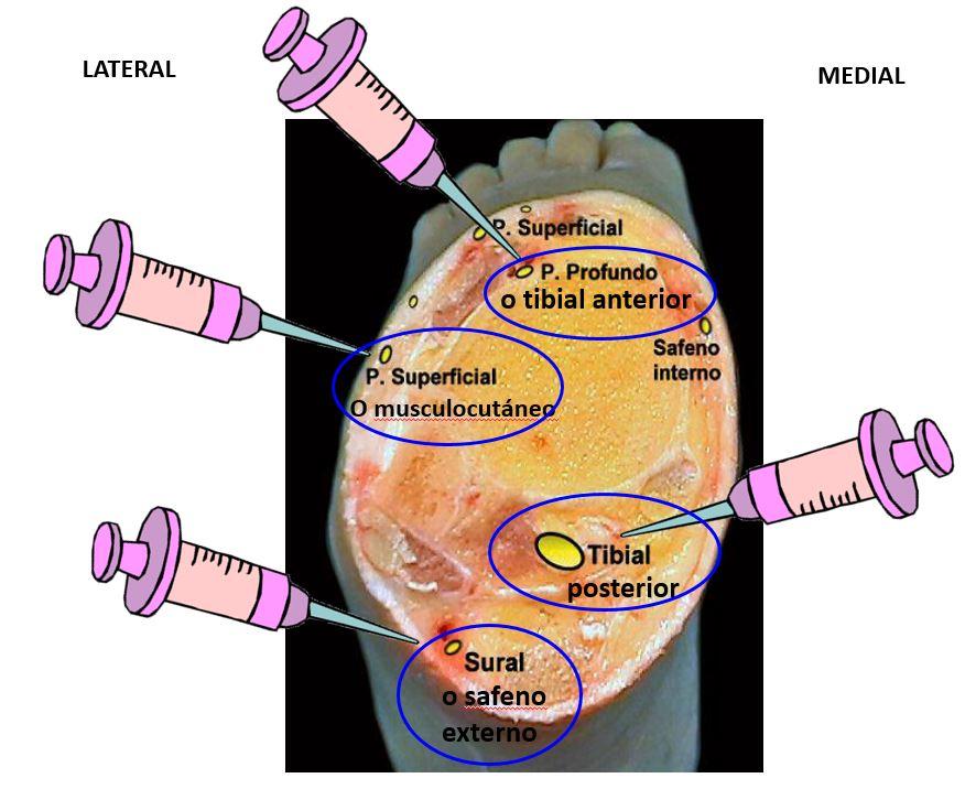 Bloqueo del tobillo | Dolopedia