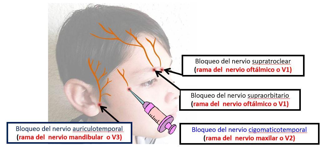 Bloqueos para el cuero cabelludo | Dolopedia