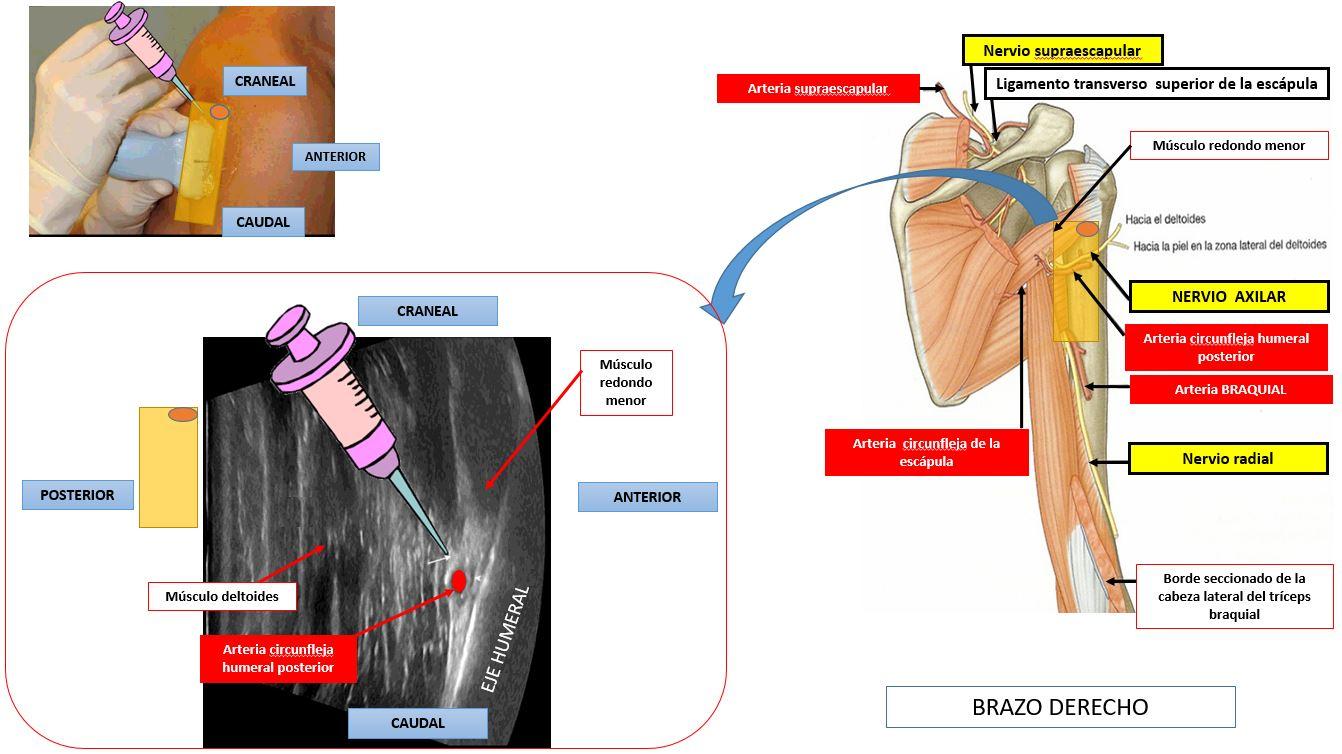Bloqueo del nervio axilar o circunflejo | Dolopedia