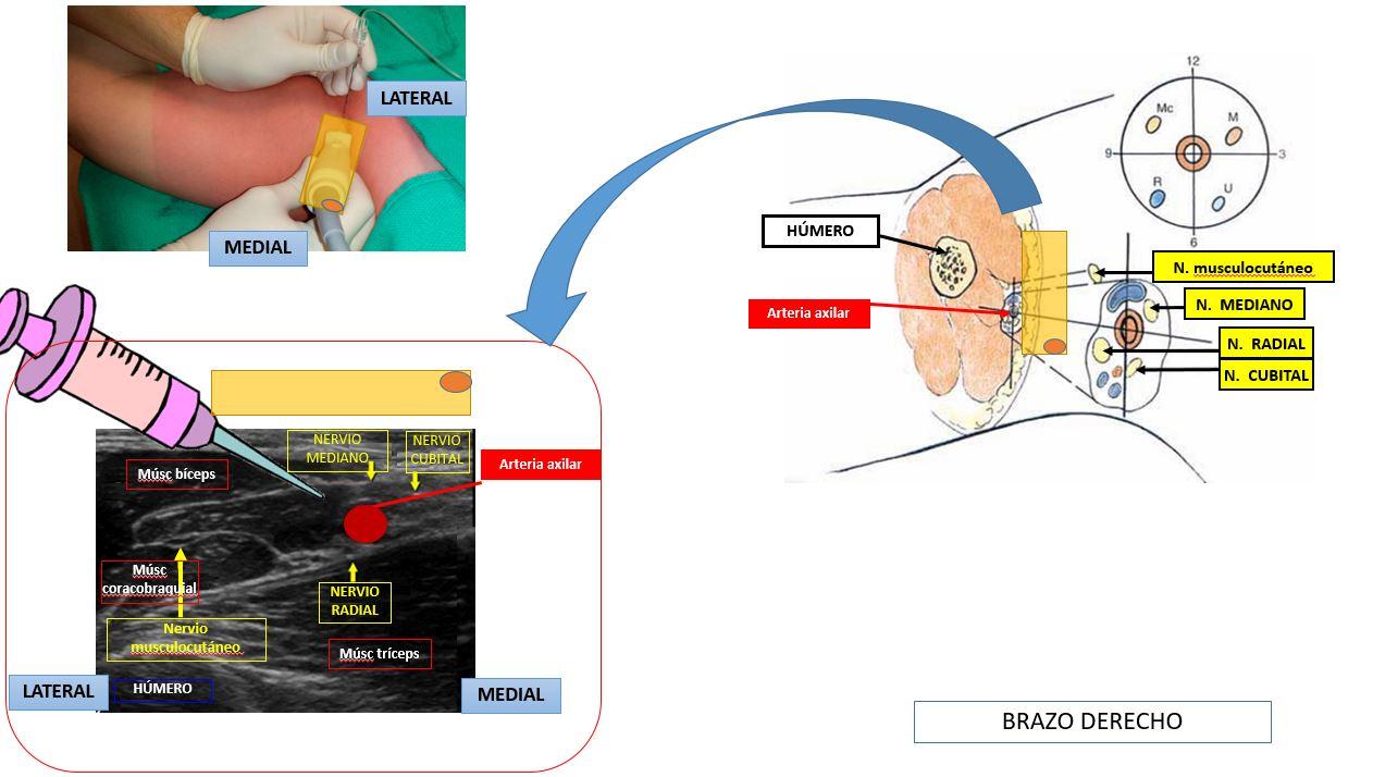 Bloqueo del plexo braquial por vía axilar | Dolopedia