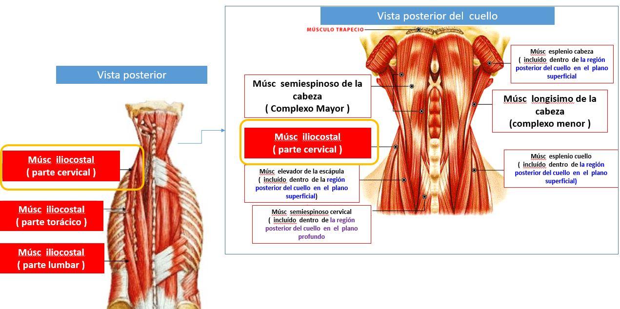Músculo iliocostal (parte cervical) | Dolopedia