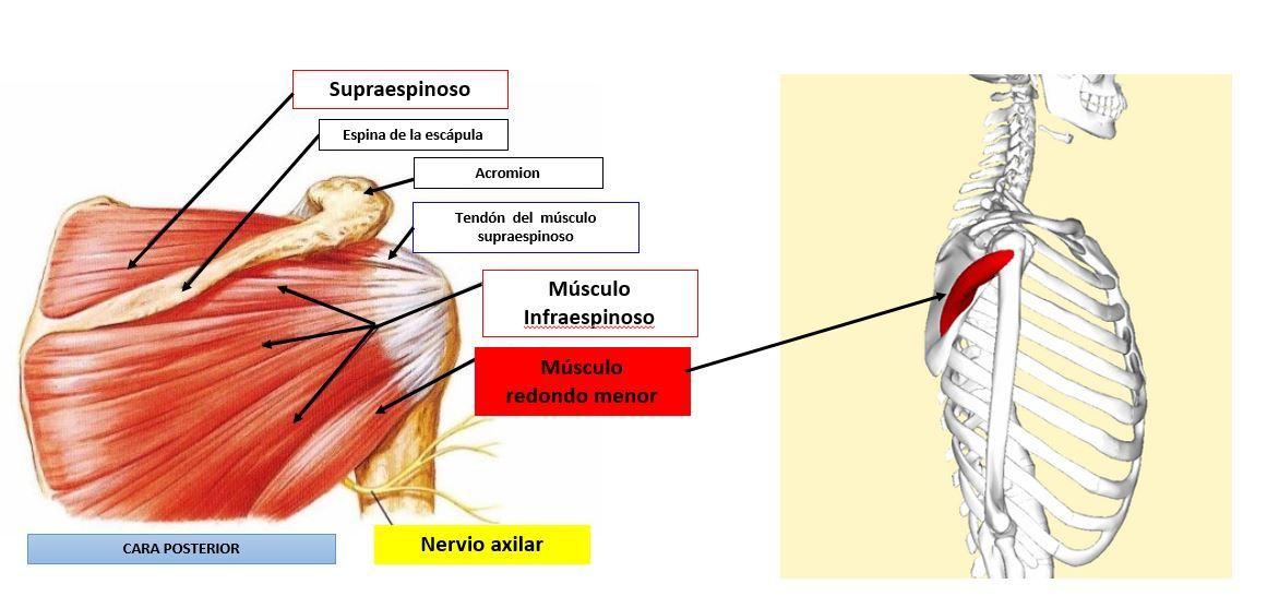 Infiltración del músculo redondo menor   Dolopedia