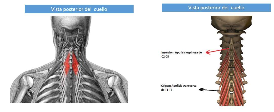 Músculo semiespinoso del cuello   Dolopedia