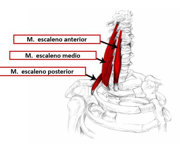 Infiltración de los músculos escalenos | Dolopedia