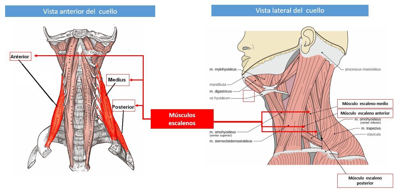 Músculos escalenos | Dolopedia