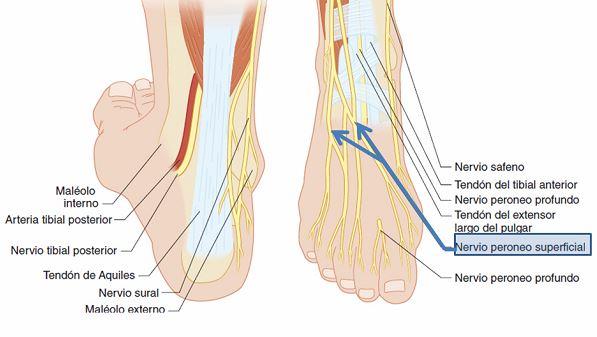 Bloqueo del nervio peroneo superficial o nervio músculocutáneo ...