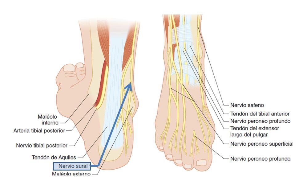 Bloqueo del nervio sural o nervio safeno externo | Dolopedia