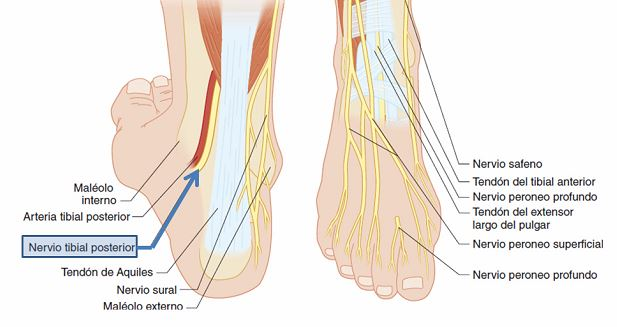 Bloqueo del nervio tibial posterior | Dolopedia