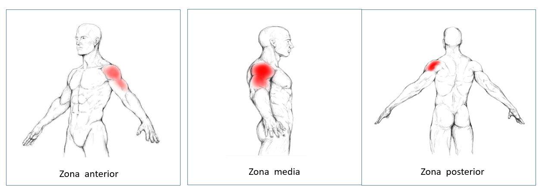 Infiltración del músculo deltoides | Dolopedia